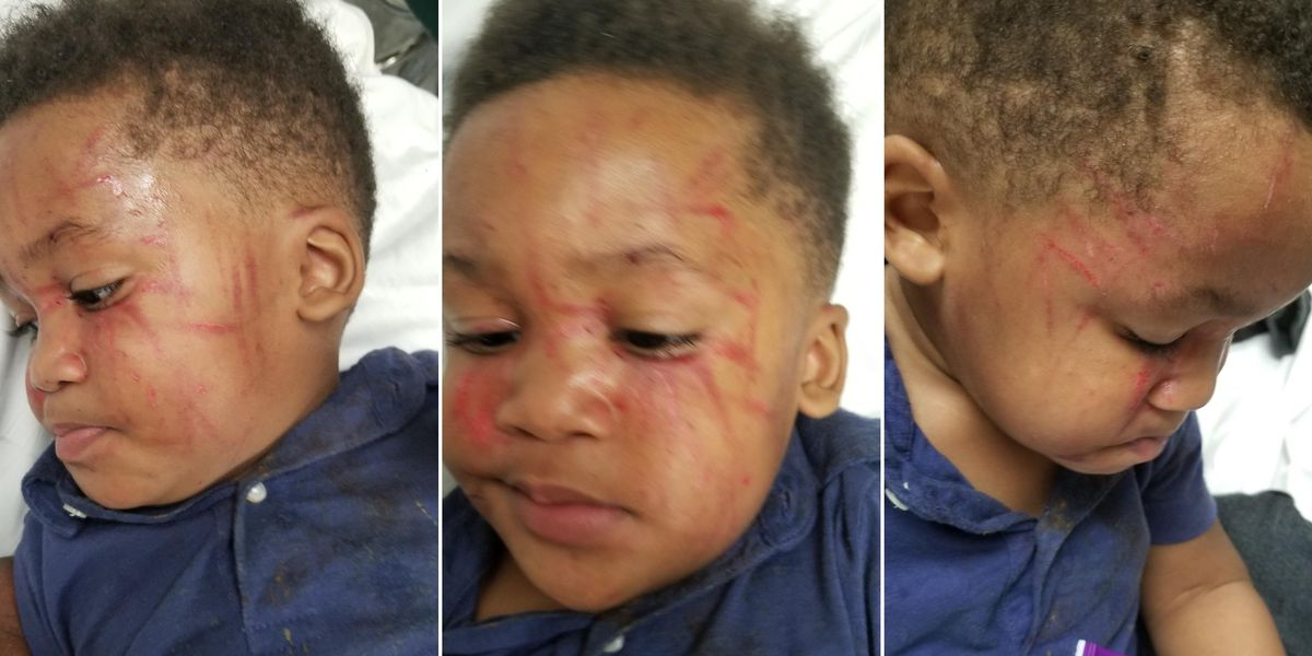 Mississippi mother horrified after toddler attacked at daycare