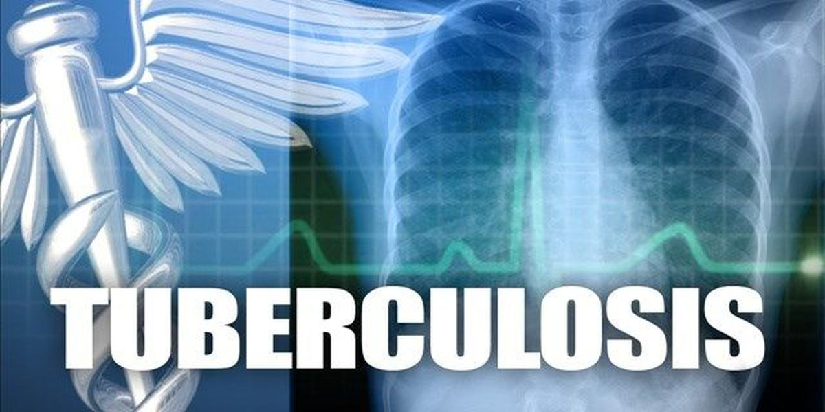 2 students test positive for tuberculosis exposure