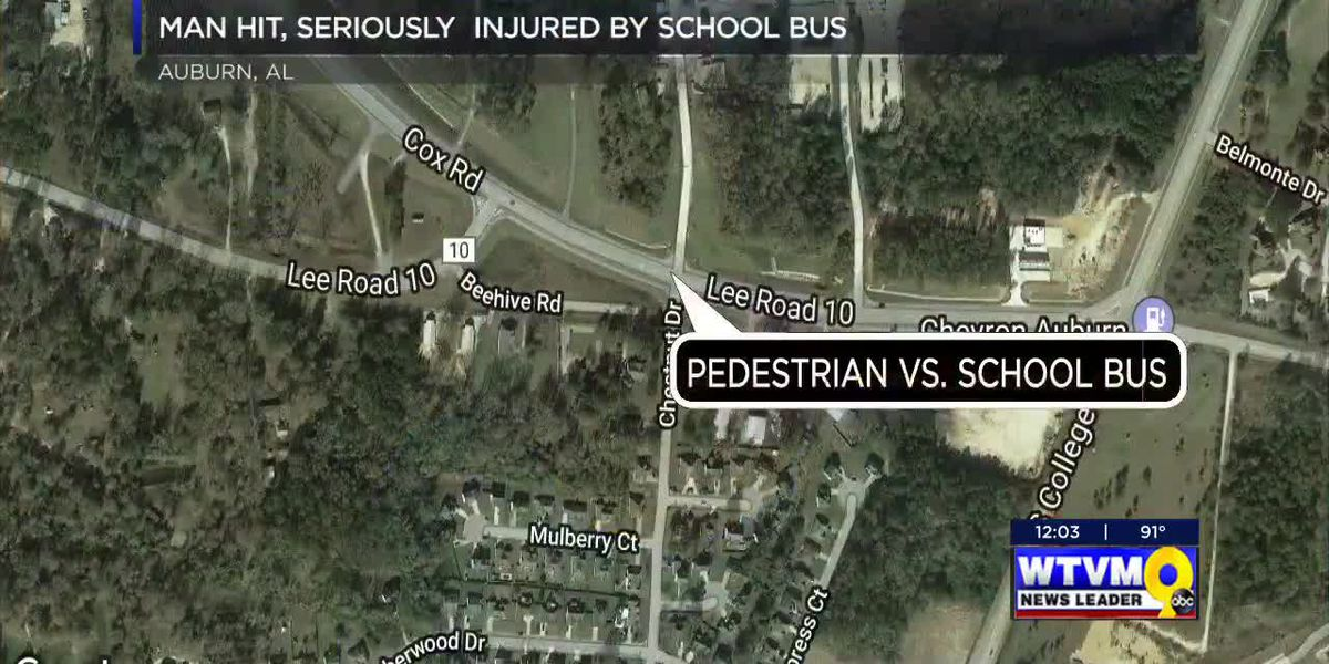 Auburn man hit, seriously injured by school bus