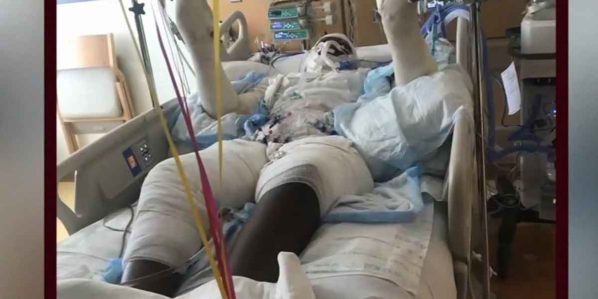 'Don't do it,' says teen severely burned doing fire challenge