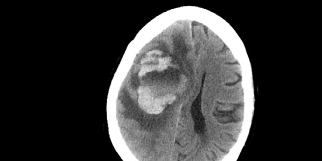 Woman contracted fatal brain-eating amoeba infection from Neti pot water, doctors say