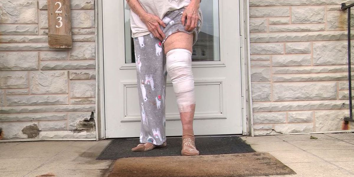 Elderly woman, 83, afraid to leave Pa. home after dog attack