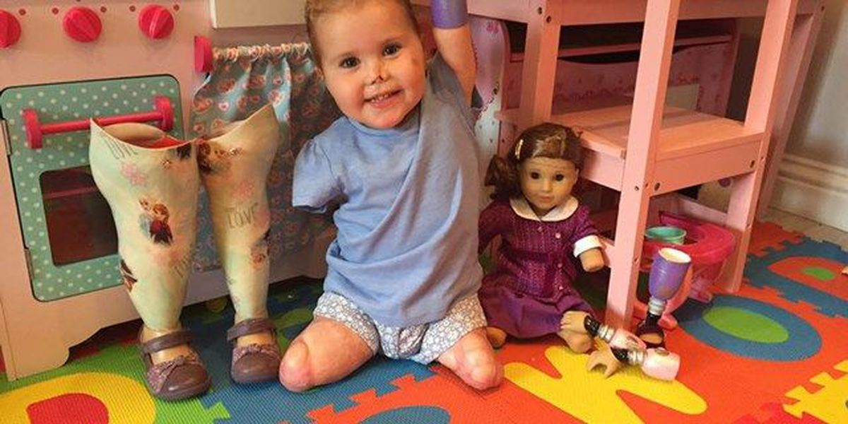 PHOTO: Quadruple amputee toddler in England gets look-a-like doll