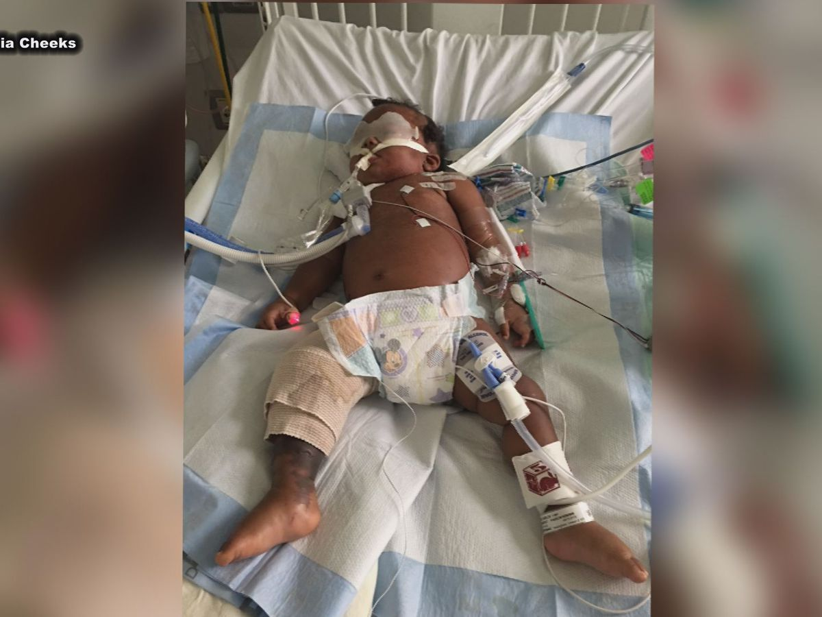 'Treat it right then, don't just wait': South GA parents issue warning after 11-month-old daughter contracts flesh-eating bacteria